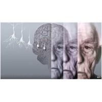 Alzheimer'da Atılım: Tedavi Mi Yoksa Aldatmaca Mı?