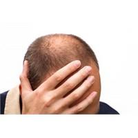 Erken Saç Dökülmesi