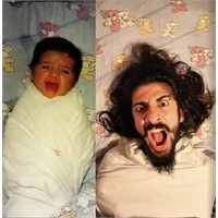 Before – After Fotoğraflar
