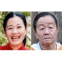 26 Yaşında Ama 70 Yaşında Gibi Görünüyor