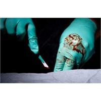 Ameliyat Sonrası Dikkat Edilmesi Gerekenler