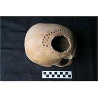 Peru' Da 1000 Yıl Önce Yapılan Kafatası Ameliyatı