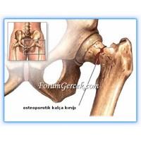 Kemik Erimesi (Osteoporoz) Ve Tipleri