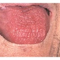 Ağız Kuruluğu Hastalıkların Nedeni Haline Geliyor