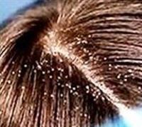 Saç Diplerindeki Kuruluk İçin
