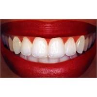 Sağlıklı Dişler İçin Ne Yemeli?