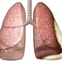 Akçiğer Hastalıkları
