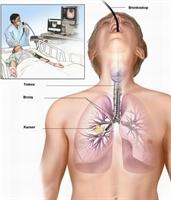 Akciğer Kanserini Önleyici Kür