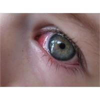 Lens Kullanırken Göz Kanlanması
