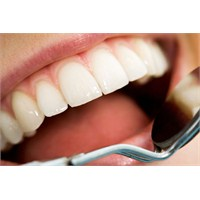 Diş Temizletme Diş Eti Hastalıklarını Önlüyor!
