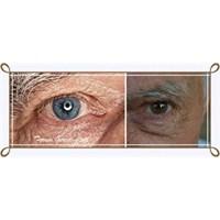 Göz'de Presbiyopi Hastalığı Ve Tedavisi