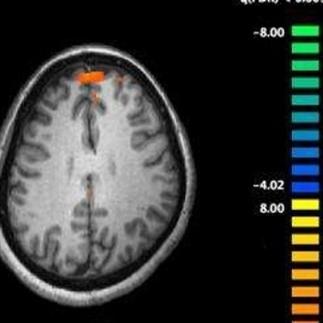 Meer inzicht in de hersenen met VR