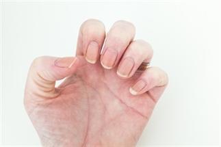 Snel en gemakkelijk jouw nagels witter maken